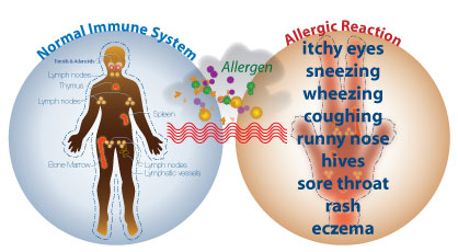 intro_to_allergies sargam