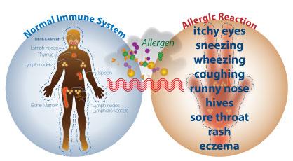 intro_to_allergies sargam